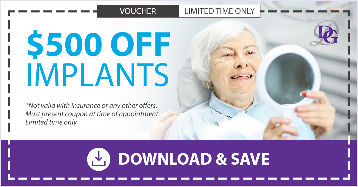$500 coupon for dental implants