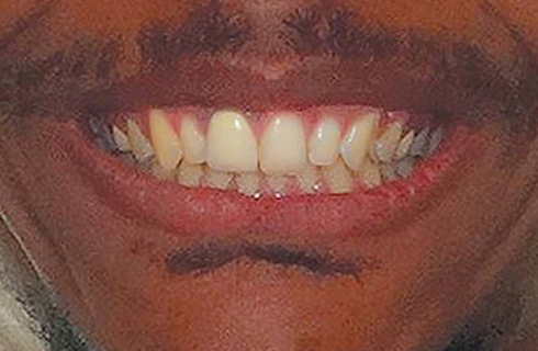 man's smile after dental work