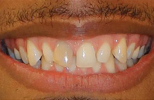 man's smile before dental work