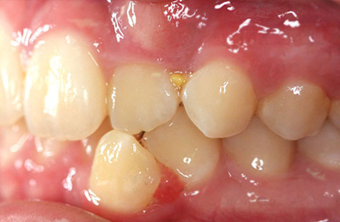 pre-dental work teeth