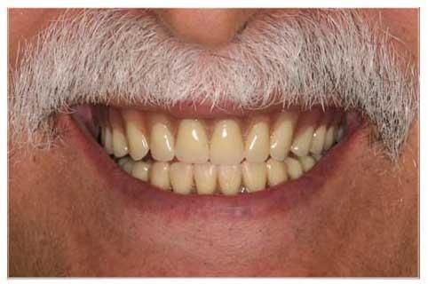Man after dentures from DeJesus Dental Group