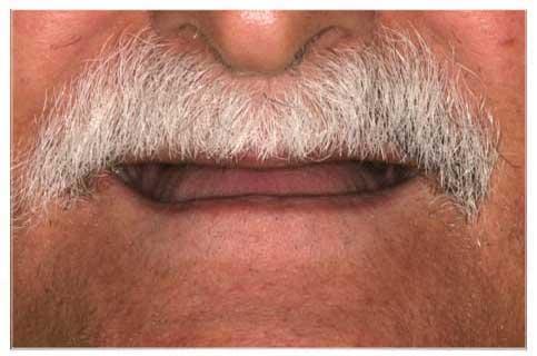 Man before dentures from DeJesus Dental Group