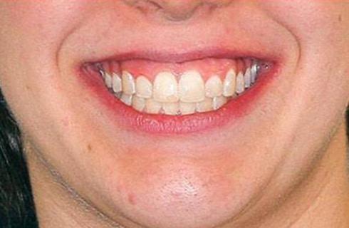 Smile after coming to DeJesus Dental Group