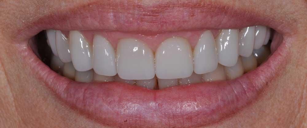smile with dental veneers from DeJesus in Bridgeport