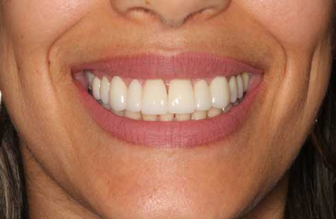 Mouth before getting veneers in Shelton