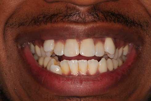 smile before orthodontics