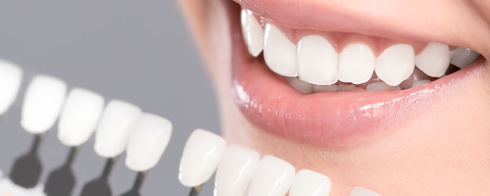 Teeth whitening available at DeJesus Dental