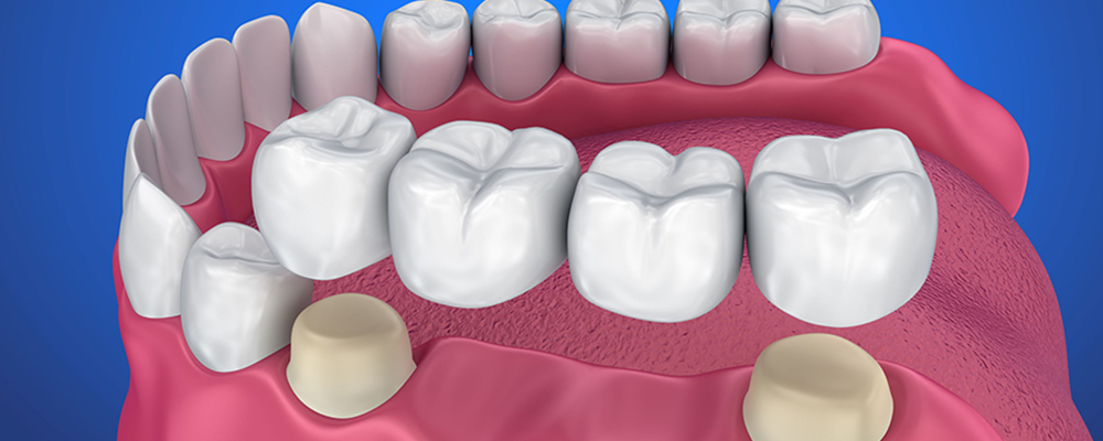 Diagram of dental bridge from DeJesus Dental