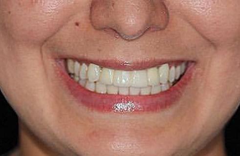 After a dental bridge from DeJesus