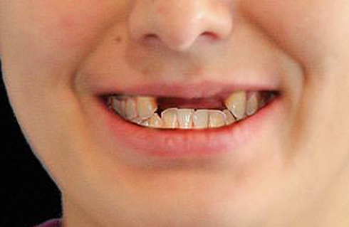Before a dental bridge from DeJesus