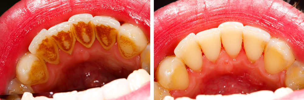How Often Should I Get My Teeth Cleaned By A Dentist?