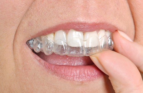 The Dos And Dont's Of Invisalign