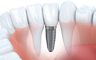 Single tooth implant vs. Full Mouth dental implants