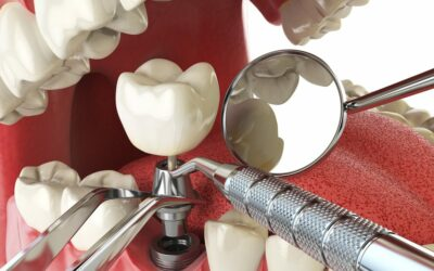 10 Questions To Ask Before Dental Implant Surgery