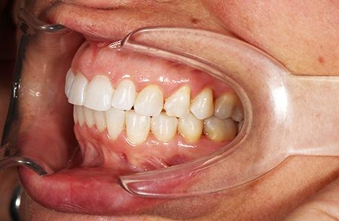 smile after dental work