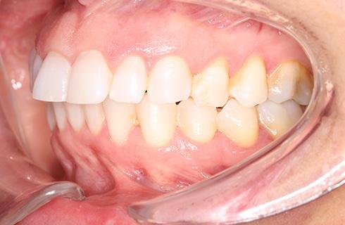 smile before dental work