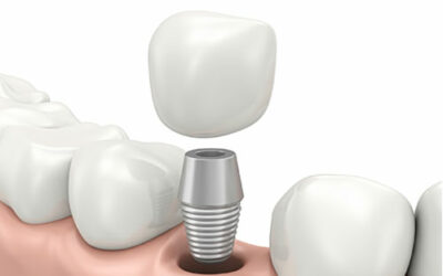 Why You Can (And Should) Get A Dental Implant