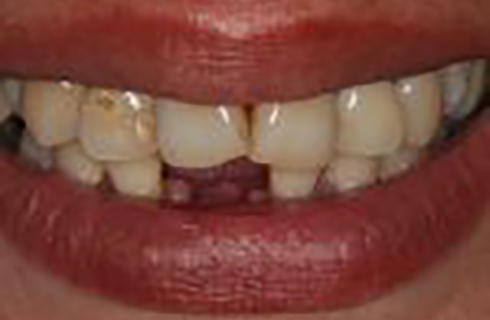 Smile before receiving implants at DeJesus Dental