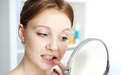 Hidden Dangers of DIY Teeth Cleaning Kits